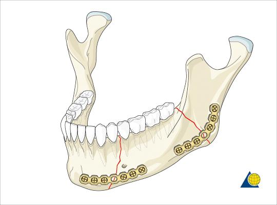 fracture Jaw Immobilization | Dr Aklilu Dental Clinic